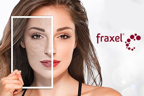 laser frakcyjny efekt przed i po