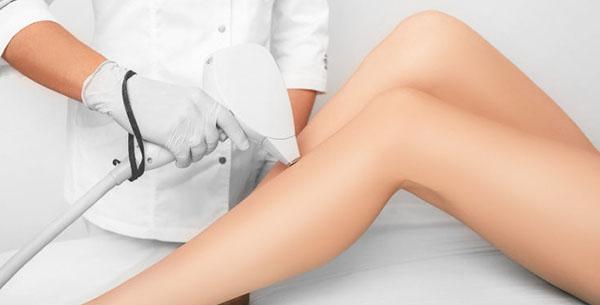depilacja laserem nóg