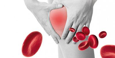 grafika symbolizująca ból kolana