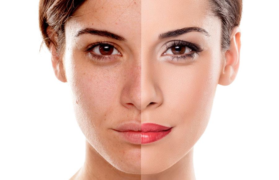 efekt przed i po zabiegu na twarz