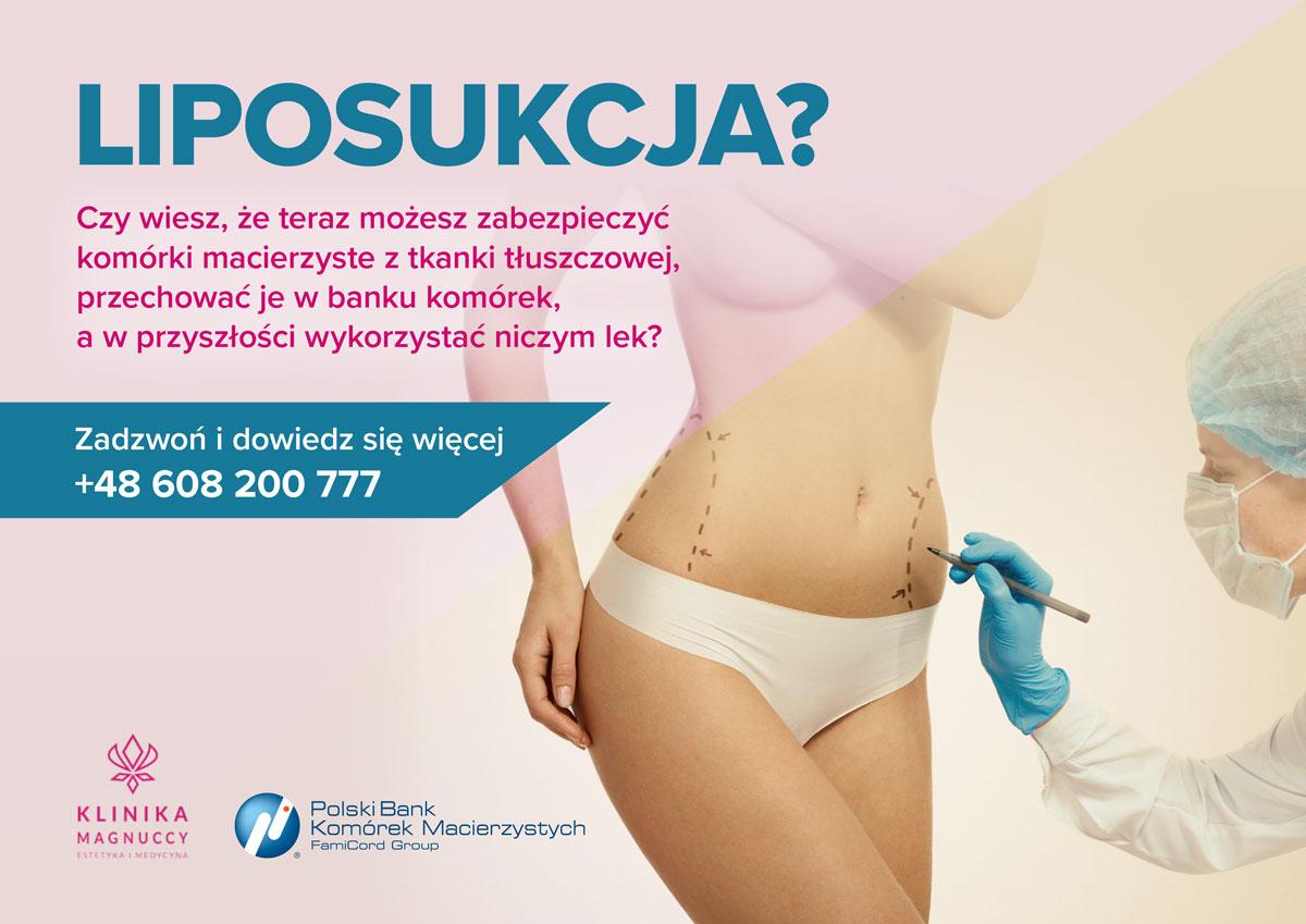 Plakat Dotyczący Liposukcji