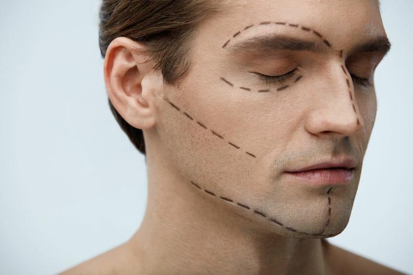 przerywane linie na twarzy mężczyzny